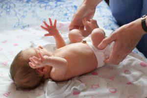 Hernia ombilicală la copii bebeluș