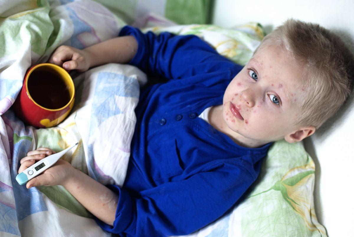 Reguli De Urmat Pentru Copiii Cu Varicelă De La Medicul Pediatru