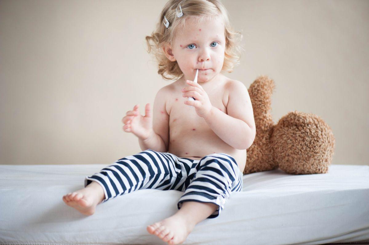 Epidemia De Rujeolă Se Extinde Prima Vaccinare Ror Se Face De Acum