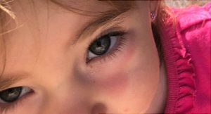 Lennon Sands si reactia ei alergica la crema de protectie solara