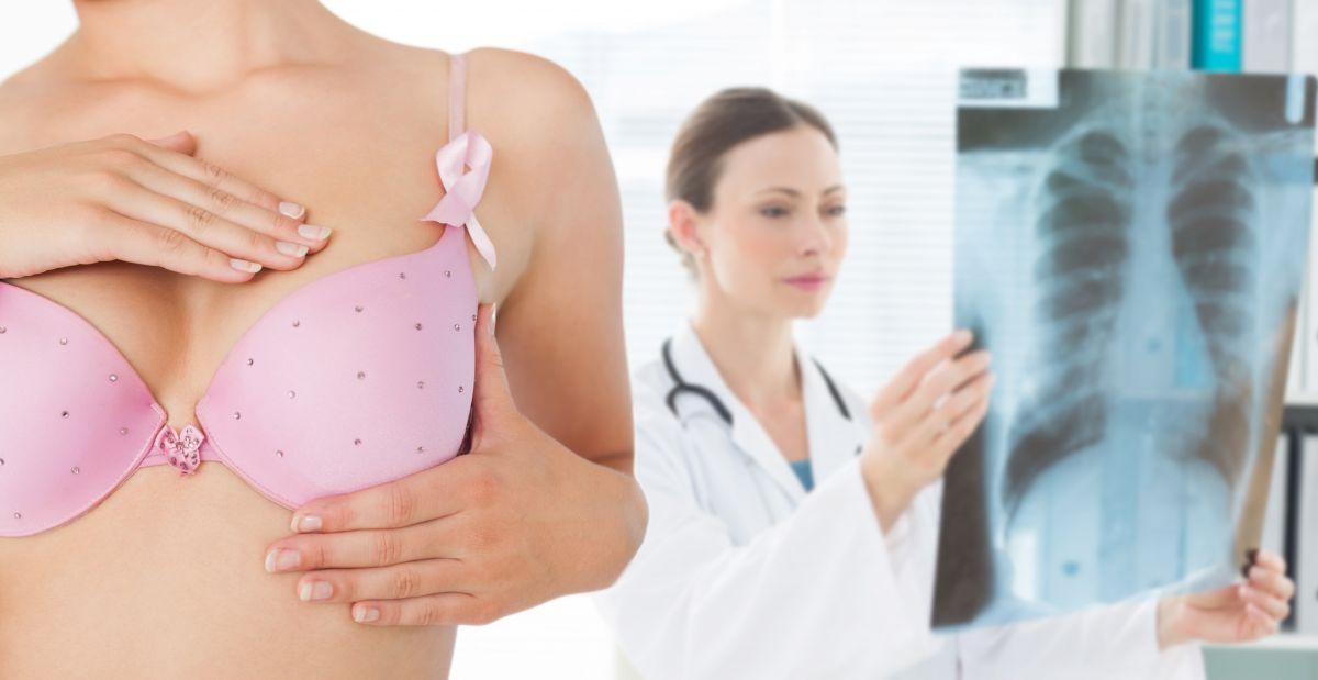 mamografie medic femeie