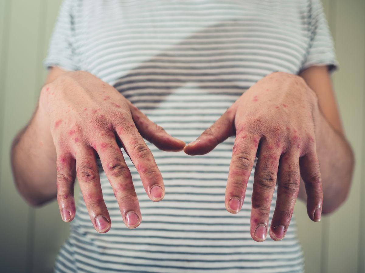 virusul gură mână picior