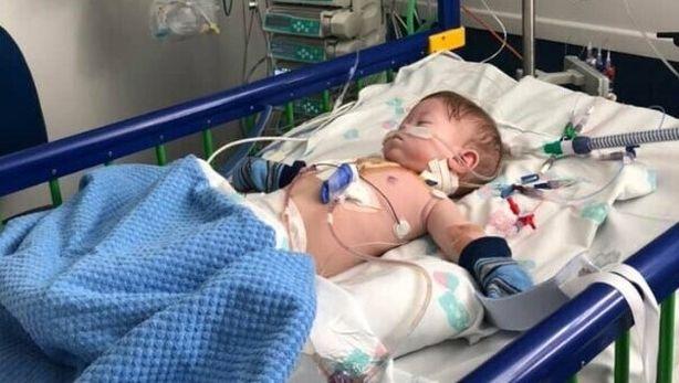 bebelus prematur operatie